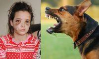 5 жутких случаев нападения собак на детей (ВИДЕО)