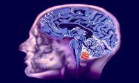 Новая медицинская разводка в Москве: Томография мозга на дому за все наличные