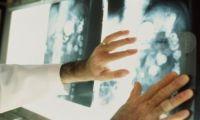 Алтайские и американские ученые будут совместно бороться с онкозаболеваниями