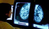 Ученые объявили о новой терапии рака
