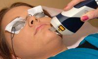 Лазерное омоложение лица — активация естественного регенеративного ресурса кожи