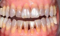 Что такое тетрациклиновые зубы
